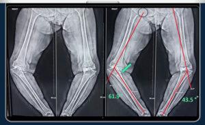 severe varus knee deformity xray
